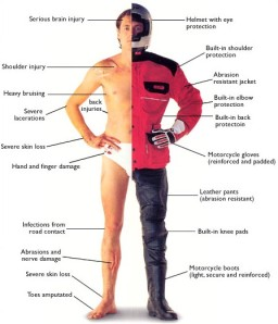 Motorcycle Injury Areas